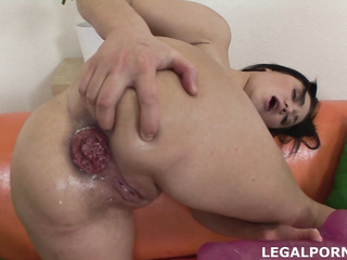 anal gape